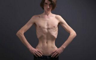 Симптомы и лечение анорексии
