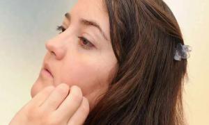 Лечение и профилактика дерматилломании