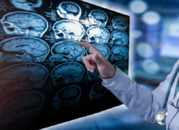 Врач рассматривает снимки головного мозга